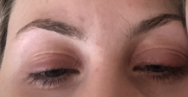 girl after getting eyelashes removed