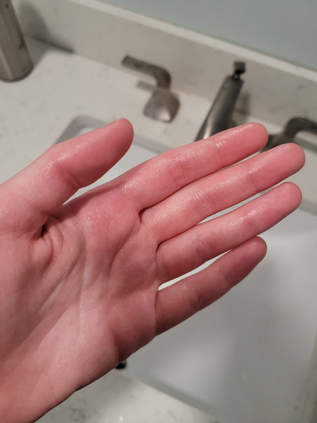 red greasy hand