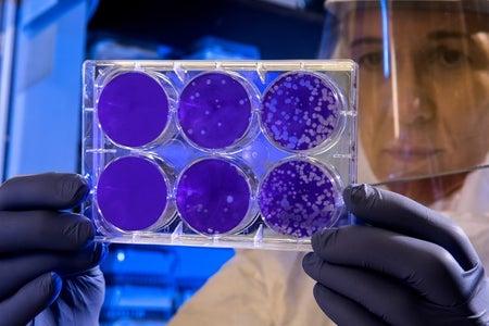 scientist holds virus
